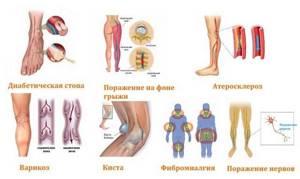 Немеет пятка: патологические и физиологические причины потери чувствительности, методы диагностики и лечения, рекомендации по питанию и образу жизни, меры профилактики