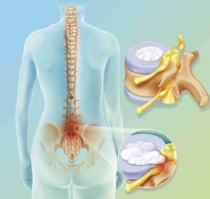 Размеры позвоночной грыжи, требующие операцию: необходимость хирургического вмешательства и величина протрузий, показания к удалению и факторы риска
