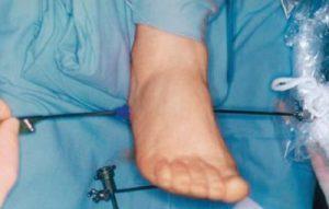 Оперативное лечение пяточной шпоры: показания и противопоказания для операции, виды вмешательств и правила подготовки, послеоперационная реабилитация