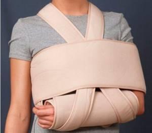 Косыночная повязка при переломе руки: общие правила использования, способ наложения, преимущества и недостатки, как сделать для фиксации растяжения