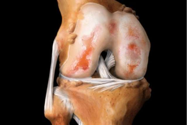 Лечение ревматоидного артрита препаратами нового поколения: особенности системной медикаментозной терапии, показания и противопоказания, рекомендации врачей