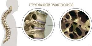 Остеопения: причины, степени, симптомы, диагностика и лечение болезни позвоночника, профилактика