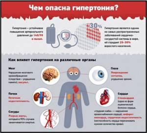 Болезнь Рота: признаки возникновения заболевания и факторы риска, методы диагностики и способы терапии, лечебная физкультура и профилактика патологии