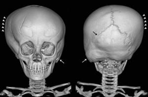 Синостоз костей: виды и классификация заболевания, причины развития и клиническая картина, методы диагностики и лечебные мероприятия, профилактика и прогноз для жизни
