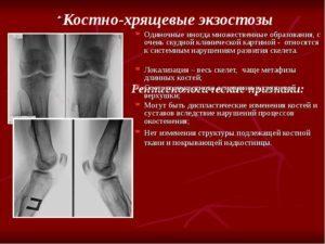 Экзостоз: формы и локализация патологии, что это такое и почему он возникает, основные симптомы, диагностика и лечение заболевания