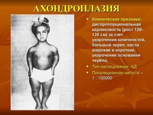 Ахондроплазия — причины, формы заболевания, как проявляется, лечение и профилактика, рекомендации врачей Авидео