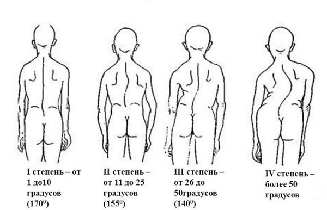 Берут ли в армию со сколиозом 1, 2, 3 степени: причины и симптомы заболевания, подтверждение диагноза, особенности прохождения медкомиссии и возможность получения отсрочки