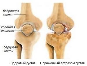 Ревматоидный артроз: что это такое, причины и признаки заболевания, препараты для лечения, осложнения и прогноз