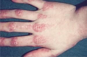 Миозит: что это, виды, причины появления, симптомы, диагностика и методы лечения народными и медицинскими средствами