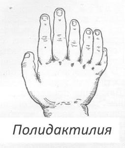 Эктродактилия: что это такое, классификация патологии и клиническая картина, внешние проявления и методики лечения