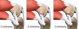 Дисторсия коленного сустава: причины возникновения патологии, механизм ее развития и клинические симптомы, первая помощь и лечебные мероприятия, возможные последствия
