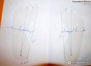 Тейпирование при плоскостопии: преимущество и принцип действия метода, правила и схемы наложения тейпов, отзывы об эффективности процедуры