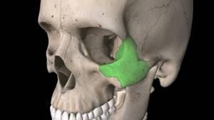 Перелом скуловой кости: классификация и основные причины травмы, характерные симптомы и правила оказания первой помощи, методы лечения и реабилитационный период