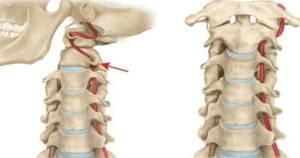 Тошнота при остеохондрозе шейного отдела: причины и симптомы, первая помощь и последующее лечение патологии, возможные осложнения и последствия