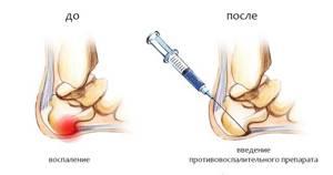 Остеофиты пяточных костей: причины и признаки образования шпоры, медицинские способы лечения и народные рецепты, показания к операции