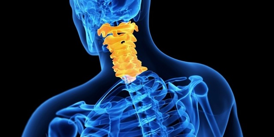 Спондилез шейного отдела позвоночника: признаки и описание заболевания, как лечить, способы диагностики и провоцирующие факторы
