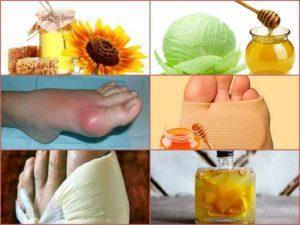 Сало при лечении подагры: польза и вред продукта, правила применения при заболевании и рецепты народной медицины, важные рекомендации врачей