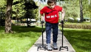 Несовершенный остеогенез: причины появления, симптомы, диагностика и способы лечения, профилактика заболевания