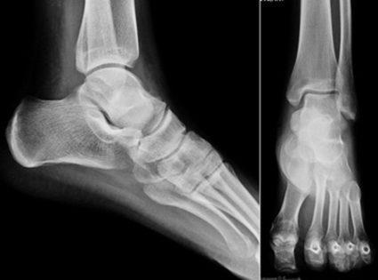 Разрыв связок стопы: что представляет собой травма и причины возникновения, первая помощь и лечение в домашних условиях, показания к операции, реабилитация