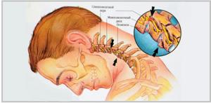 Шейный кифоз: классификация и признаки болезни, стадии развития, лечебные методы и эффективные способы терапии