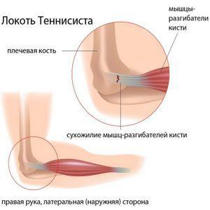 Медиальный эпикондилит локтевого сустава: признаки и причины патологии, почему появляется воспаление и как его предотвратить, способы терапии