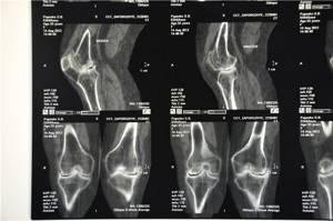 Колено бегуна: описание патологии и факторы риска, методы диагностики и профилактические мероприятия, хирургическое вмешательство и способы восстановления