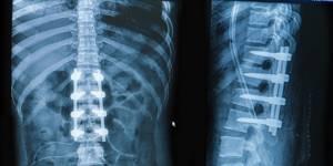 Перелом отростков позвоночника: причины и симптомы, первая помощь, диагностика повреждения и способы лечения медикаментозными средствами, реабилитация и профилактические меры