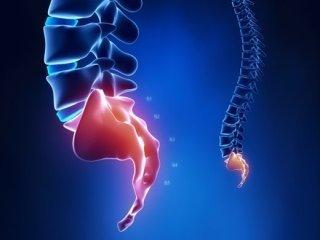 Перелом копчика: классификация травм, симптомы, первая помощь пострадавшему, иммобилизация и диагностика, принципы лечения и профилактические меры