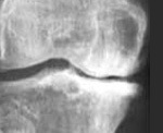 Мелореостоз: особенности и причины развития заболевания, клиническая картина и специфика диагностики, методы лечения и прогноз для жизни