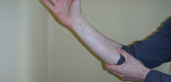 Туннельный синдром нерва локтевого сустава: описание патологии и признаки, консервативные методы терапии и показания к операции, народные средства