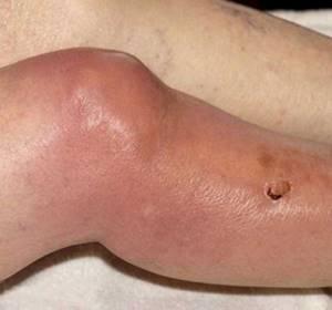 Гнойный артрит суставов: классификация и причины развития патологии, основные симптомы и способы диагностики, методы лечения и возможные осложнения, профилактика и прогноз