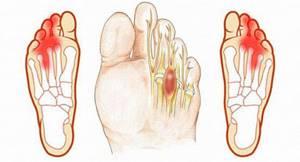 Сустав стопы болит при ходьбе