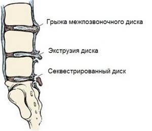 Секвестрированная грыжа диска l5 s1: распространенные типы, что делать и как лечить, советы пациентам, причины, симптомы и лечебная тактика