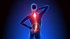 Киста позвоночника: классификация и причины появления опухоли, симптомы и методы диагностики, консервативное лечение и показания к операции, возможные осложнения