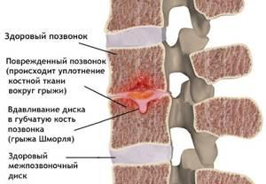 Грыжа Шморля: причины возникновения и симптомы патологии, польза ЛФК и комплекс упражнений для лечения, перечень запрещенных физических нагрузок, важные рекомендации