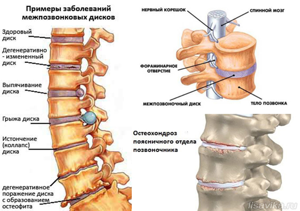 Дарсонваль при шейном остеохондрозе: принцип действия, показания и противопоказания, особенности применения прибора для лечения в домашних условиях