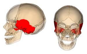 Перелом височной кости: классификация и причины повреждения, отличительные симптомы и диагностика, правила оказания первой помощи и способы лечения, последствия травмы