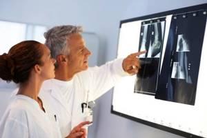 Растяжение связок плечевого сустава: причины, симптомы и лечение - Сайт об опорно двигательной системе человека