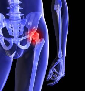 Некроз тазобедренного сустава: причины развития и стадии патологии, клинические симптомы и диагностика, консервативные и хирургические методы лечения, меры профилактики
