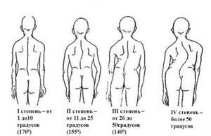 Сколиоз: как распознать искривление и описание патологии, разновидности и стадии болезни, клиническая картина и признаки болезни, методы терапии и профилактика осложнений