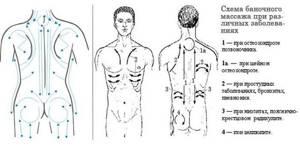 Баночный массаж при остеохондрозе позвоночника: особенности и разновидности метода, противопоказания и показания, техника выполнения и положительный эффект от процедур