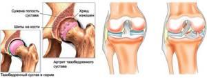 Укрепляем суставы и связки со спортивным питанием: зачем необходимы БАДы, обзор лучших препаратов, их состав и принцип действия, рекомендуемая суточная дозировка