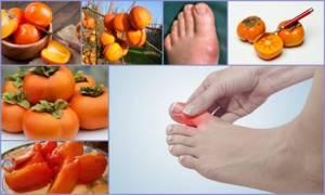 Употребление хурмы при подагре: состав и лечебные свойства фрукта, можно ли есть при заболевании, противопоказания и ограничения, отзывы диетологов