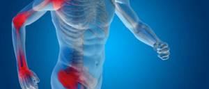 Полиартрит суставов: решение, не выходя из дома, описание заболевания и признаки, какие способы лечения лучше, виды и методы профилактики