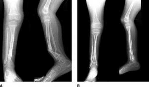 Ложный сустав после перелома: симптомы, причины возникновения, диагностика и способы лечения, реабилитация после терапии