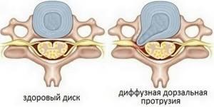 Фораминальная протрузия диска: что это такое и как лечить, симптомы и стадии формирования болезни, методы лечения ипрофилактики