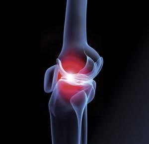 Воспаление коленного сустава: факторы риска и причины патологии, специфические симптомы и диагностика, консервативные и хирургические методы лечения, народные рецепты