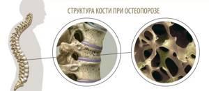 Остеопороз у детей: признаки и причины заболевания, методы лечения и профилактики недуга в детском возрасте, как предотвратить рецидив
