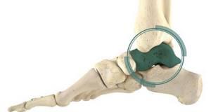 Перелом таранной кости: классификация и причины травмы, клиническая картина и методы диагностики, правила оказания доврачебной помощи и методы лечения, последствия и прогноз