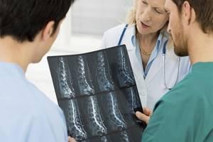 Болезнь Бехтерева: признаки и описание патологии, способы выявления и основные лекарственные препараты, возможные осложнения и профилактические действия